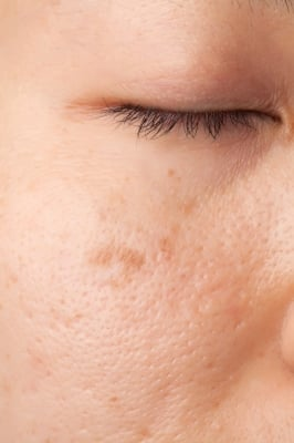 acne scar treaments