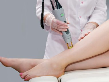how permanent is laser hair removal